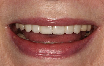 actual patient after porcelain veneers