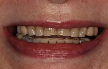 actual patient before porcelain veneers