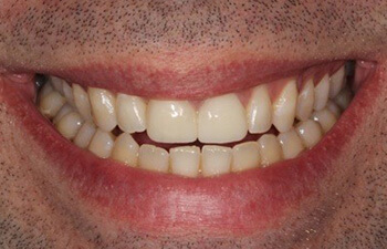 male patient after porcelain veneers