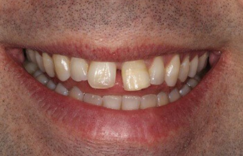 male patient before porcelain veneers