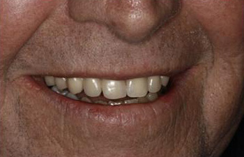 after Chaska dental implants