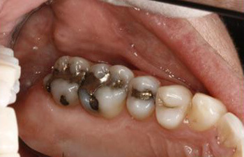 Chaska tooth-colored fillings before